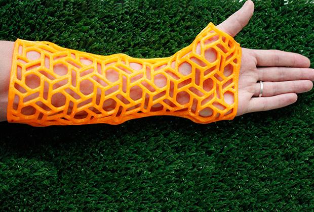 Жесткий ортез для руки, напечатанный на 3D-принтере