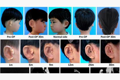 Китайцы начали выращивать уши для детей
