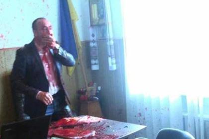 Украинского политика облили кровью из-за Крымского моста