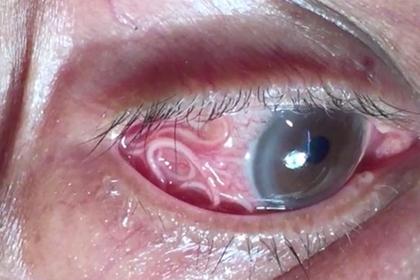 Из глаза достали 15-сантиметрового паразита