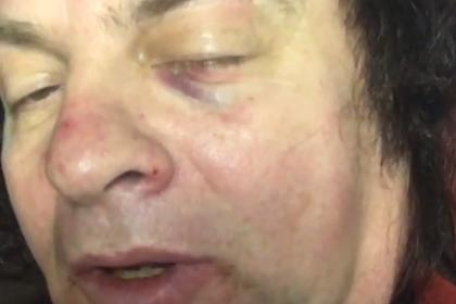 Зинчук рассказал подробности аварии и призвал водителей к бдительности