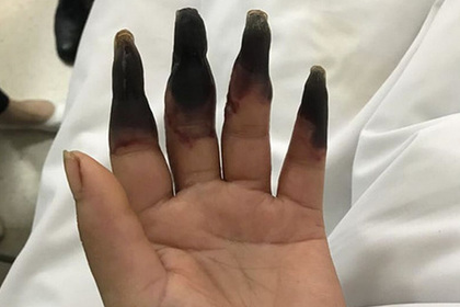 После уборки у китаянки почернели восемь пальцев
