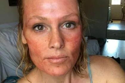 Проведенная в домашних условиях опасная процедура Кардашьян шокировала врачей