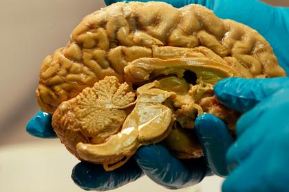 Разгадана главная тайна человеческого мозга