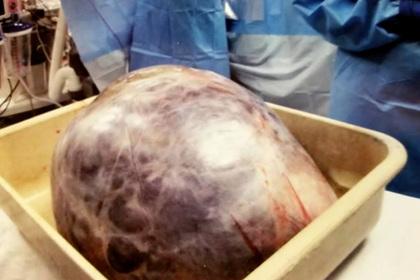 Женщина десятилетиями растила опухоль весом 23 килограмма