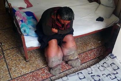 Ноги мужчины раздуло в разы после укуса комара photo