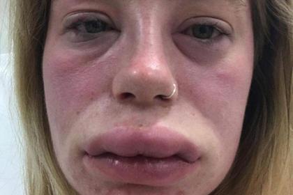 Увеличенные вдвое губы девушки озадачили врачей