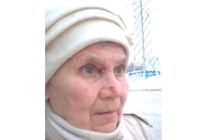 Кондуктор исцарапала лицо пенсионерке из-за 20 рублей