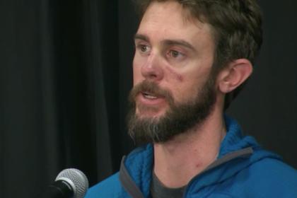 Выживший в битве с дикой пумой бегун рассказал о смертельной схватке