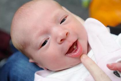 Ребенок родился с полноценным зубом и удивил врачей