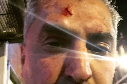 Известный радиоведущий стал жертвой нападения расиста