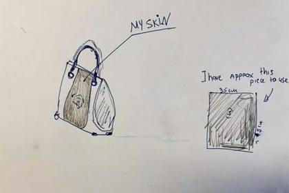 Британка попросила сделать сумочку из своей ампутированной ноги