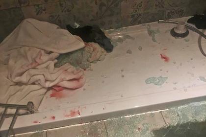 Стеклянная дверь в душе отеля внезапно разлетелась на осколки и изрезала туриста