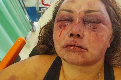 Вдова бойца MMA выжила в четырехчасовом избиении благодаря навыкам борьбы