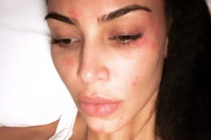 Ким Кардашьян показала прогрессирующее кожное заболевание на фото без макияжа