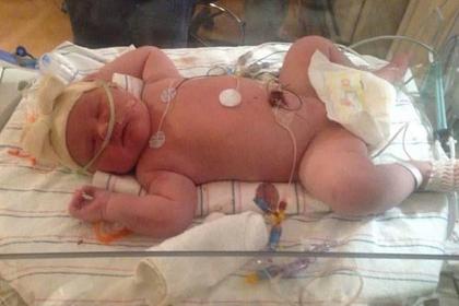 В США родился аномально тяжелый ребенок