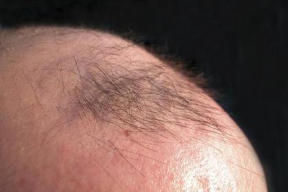Мужчина помыл голову отравой и остался без волос