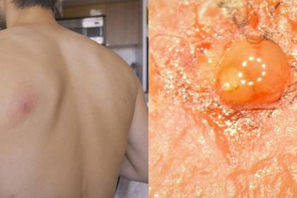 Энтомолог позволил личинкам паразита расти внутри себя