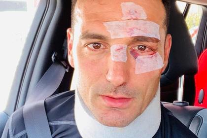 Сбитый машиной тренер сборной Аргентины показал свои раны