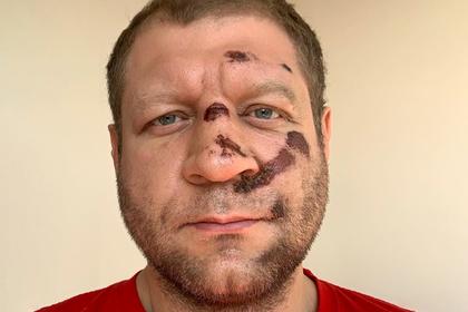 Александр Емельяненко перенес бой после падения с велосипеда