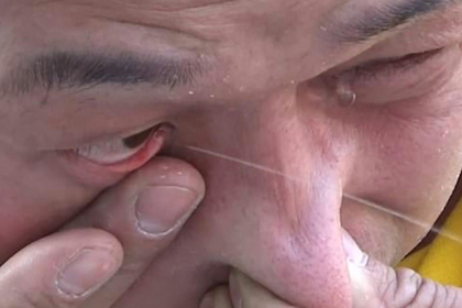Мастер кунг-фу втянул воду носом и брызнул ей из глаза