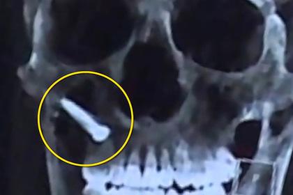 Китаец вбил себе в лицо гвоздь и остался жив