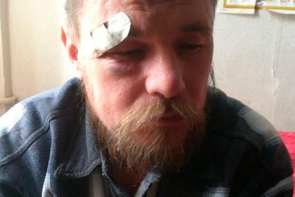 Охранники избили покупателей в российском магазине из-за шутки с орехами