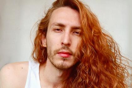Обладатель аномально густых волос пожаловался на издевательства