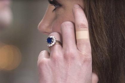 «Вечный» пластырь на пальцах Кейт Миддлтон озадачил поклонников