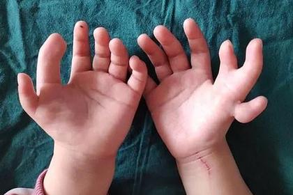 Девочке с 14 пальцами отрезали лишнее