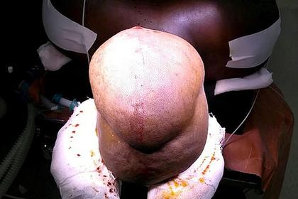 Мужчина вырастил на голове самую большую в мире опухоль