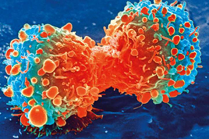 Названа истинная причина развития рака