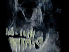 Рентгеновский снимок челюстей мумии Хатшепсут. Фото AFP