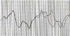 """Расхождение двух графиков погоды, берущих начало из одной точки. Распечатка Лоренца 1961 года, воспроизведенная в книге Джеймса Глейка """"Хаос: Создание новой науки"""" (СПб., """"Амфора"""", 2001)."""