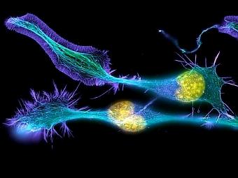 Микротрубочки (бирюзовые), актин (лиловый) и ДНК (желтая) в дифференцирующемся нейроне. Фото Dr. Torsten Wittmann/Nikon Small World
