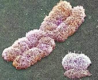 X- и Y-хромосомы, фото с сайта euscea.org