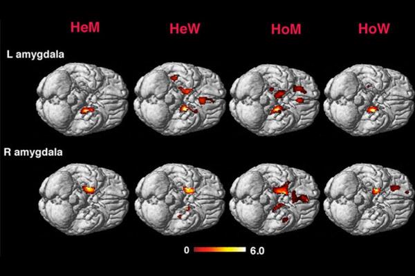 Томограмма мозга гетеро- и гомосексуальных мужчин и женщин