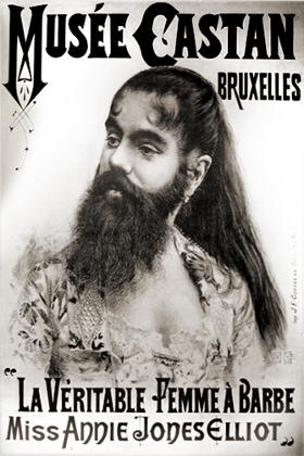 Энни Джонс (1860-1902) — бородатая женщина из штата Вирджиния