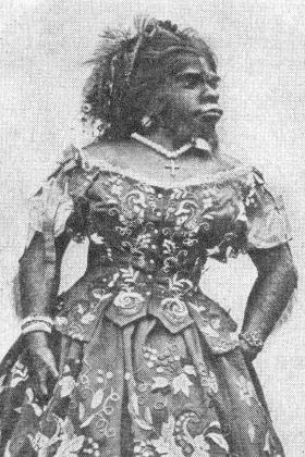 Родилась в горных лесах Мексики с целым рядом физиологических аномалий, среди которых была и борода. Выступала в шоу уродов в Америке, Европе и в России, где умерла в 1860 году.  После смерти Пастрана была мумифицирована. Ее останки перенесены на родину в 2013 году.