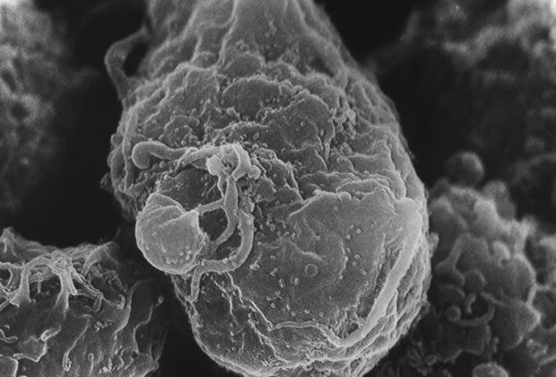 Выделение вируса иммунодефицита человека с поверхности зараженного лимфоцита