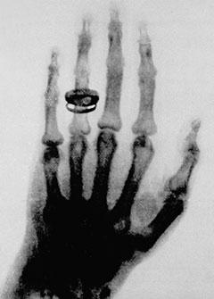 Кисть руки: ранний рентгеновский снимок