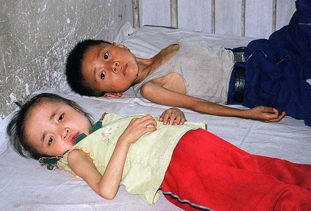Дети— жертвы голода в КНДР, июнь 1997 года