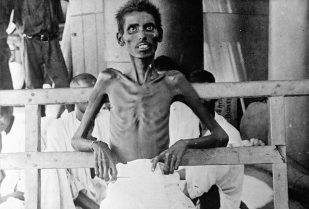 Изможденный индийский сипай из Эль-Кута во время обмена военнопленными, 1916 год
