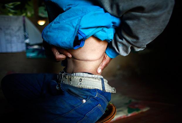 Житель Непала Кумар Будатоки показывает шрам от операции. Он надеялся, что продав посредникам почку за пять тысяч долларов, обеспечит себя до конца дней. Вместо этого получил серьезные проблемы со здоровьем и лишь часть денег, обещанных ему брокером в Хокше — деревне, уже лет десять являющейся центром нелегальной торговли органами.