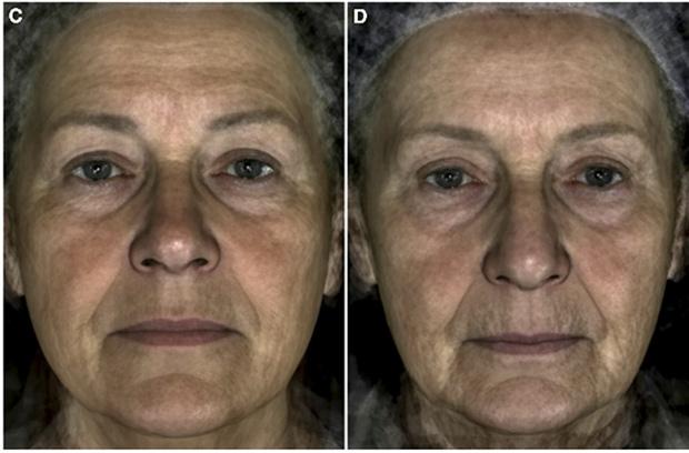 Сравнение двух усредненных лиц, полученных из фотографий 22 женщин 69 лет, чей внешний возраст равен 60 годам (C), и фотографий 22 женщин 69 лет, чей внешний возраст равен 78 годам (D), без учета эффекта морщин.