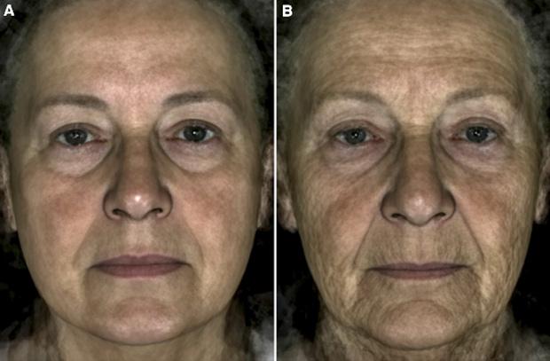 Сравнение двух усредненных лиц, полученных из фотографий 22 женщин 70 лет, чей внешний возраст равен 59 годам (А), и фотографий 22 женщин 70 лет, чей внешний возраст равен 80 годам (В), с учетом эффекта морщин.