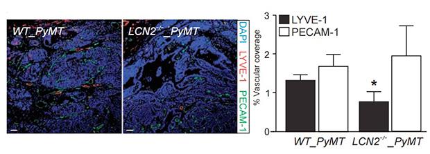Влияние LCN2, синтезируемого раковыми клетками и макрофагами, на образование кровеносных и лимфатических сосудов