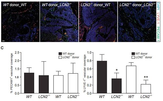Влияние LCN2, синтезируемого макрофагами, на образование кровеносных и лимфатических сосудов