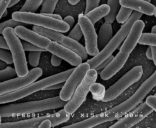 Бактерия Escherichia coli