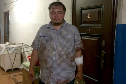 Русский «ДиКаприо» пострадал при поимке правонарушителя вПодмосковье